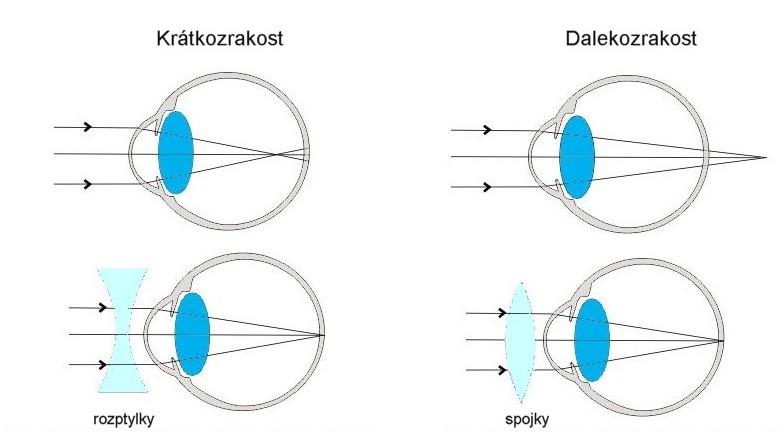 látás 6 dioptria olyan